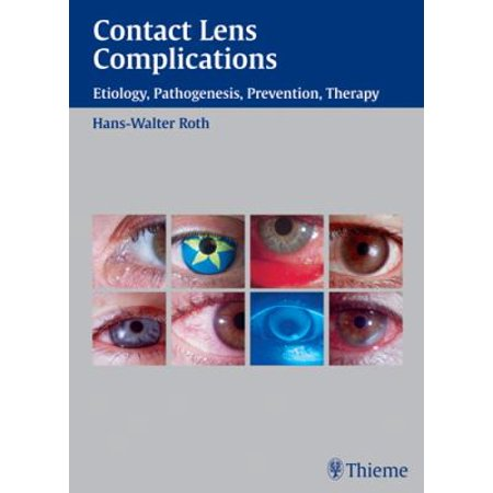 Contact Lens Complications: Etiology, Pathogenesis, Prevention, Therapy